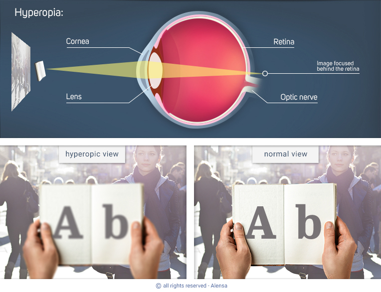 Explanation of hyperopia and comparison of hyperopic view with normal view
