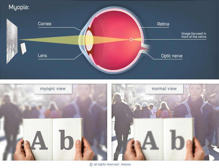 Explanation of myopia and comparison of myopic view with normal view
